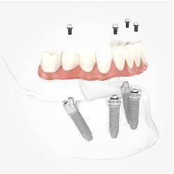 Modell eines Unterkiefers mit 4 Implantaten und Zahnersatz