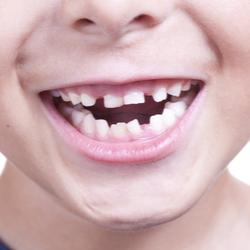 Lächelnder Kindermund mit schiefen Zähnen und Lücken